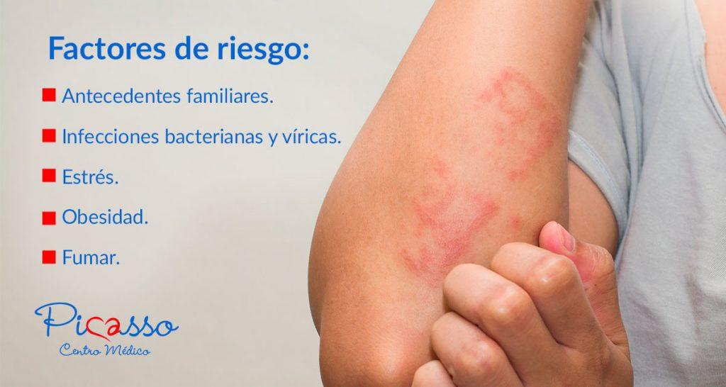 factores riesgo psoriasis