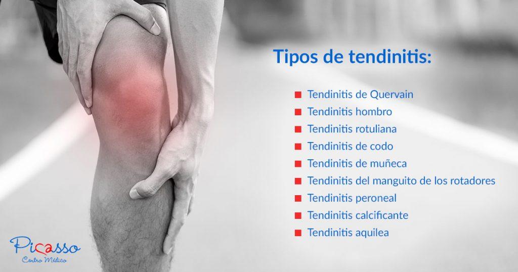 tipos-tendinitis-centro-medico