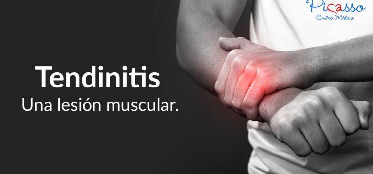 Tendinitis. Una lesión muscular
