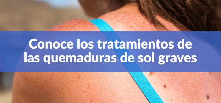 Quemaduras de sol graves: Tratamientos