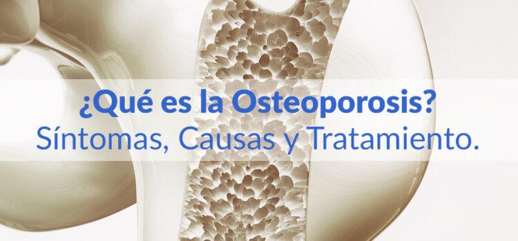 ¿Qué es la Osteoporosis? Síntomas, Causas y Tratamiento.